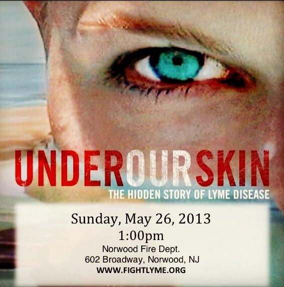 Under Our Skin Free Film Screening!
